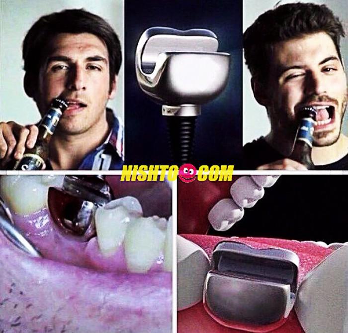 Вицове: Зъбни импланти