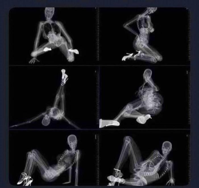 Вицове: Когато и поискаш еротични снимки, а тя е доктор - рентгенолог